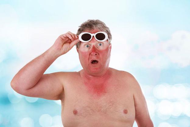 درمان آفتاب سوختگی به روش خانگی